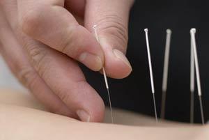 Agopuntura: come stare in salute ripristinando il flusso energetico del corpo