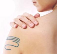 Come guarire con i simboli disegnati sul corpo – Medicina dei segni informazionale e nuova omeopatia